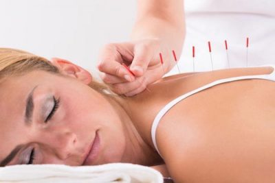 Acupuncture In Worthing At Laroma